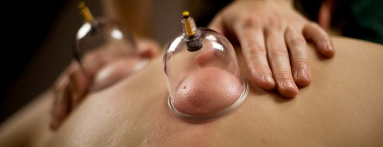 drycupping